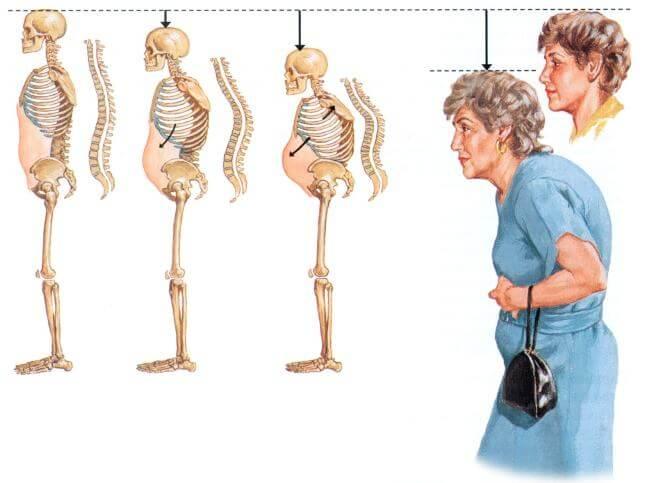 Остеопороз у женщин старше 50 лет
