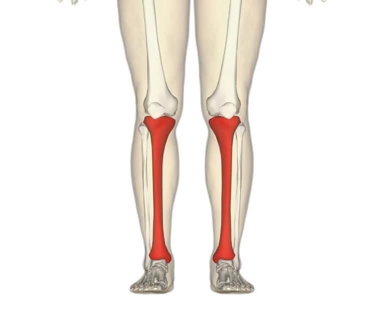 Двойной перелом берцовой кости