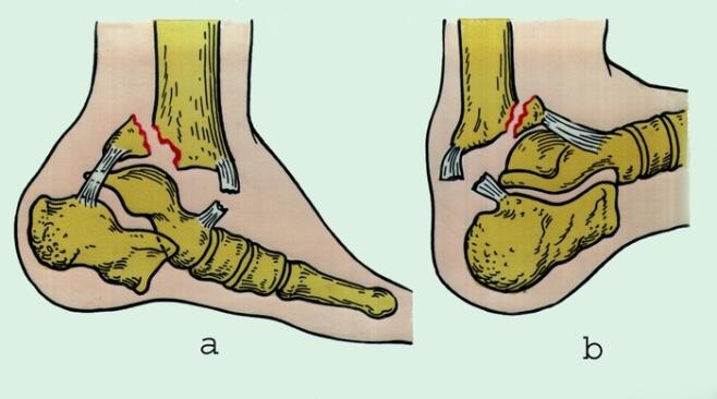 Перелом ноги голеностоп сколько срастается