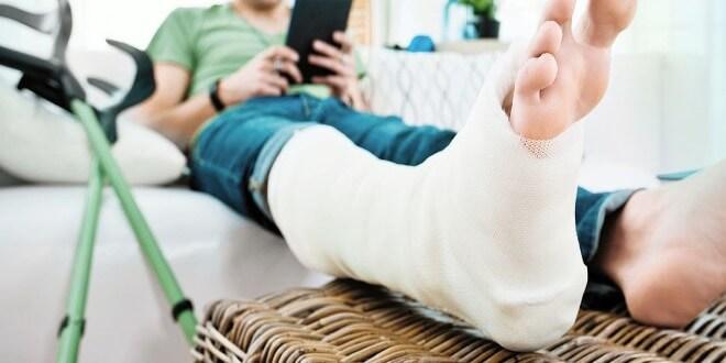 Лечение переломов костей конечностей