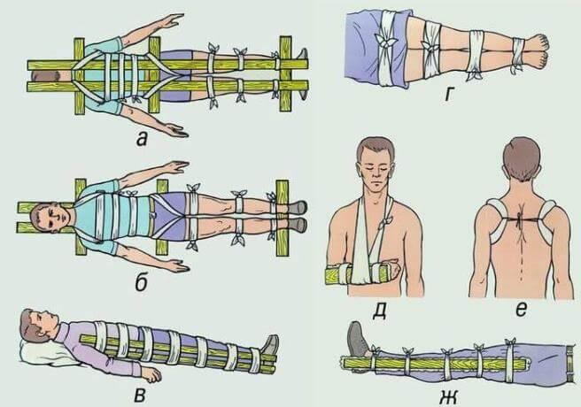 Повреждения верхних конечностей вывихи переломы первая помощь
