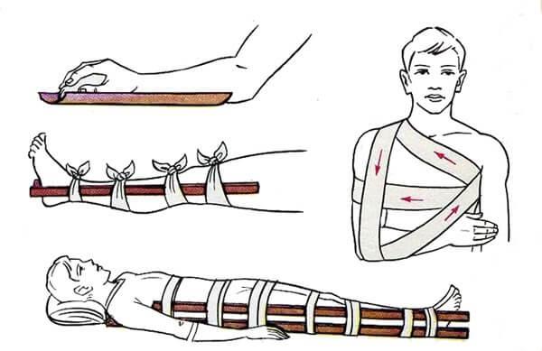 Оказание помощи при ранении вывихах ушибах переломах
