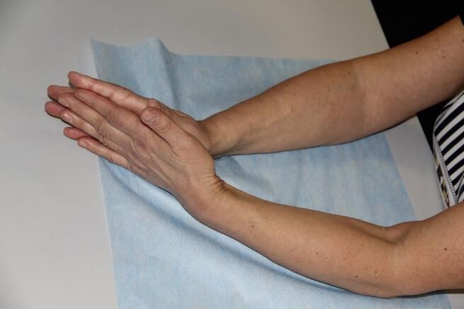Восстановление подвижности сустава после перелома руки