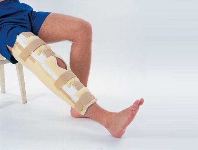 фиксация коленной чашечки