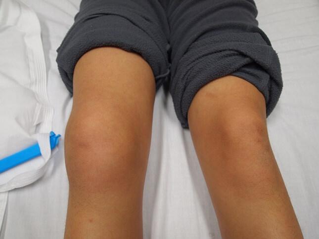 перелом коленной чашечки опухоль