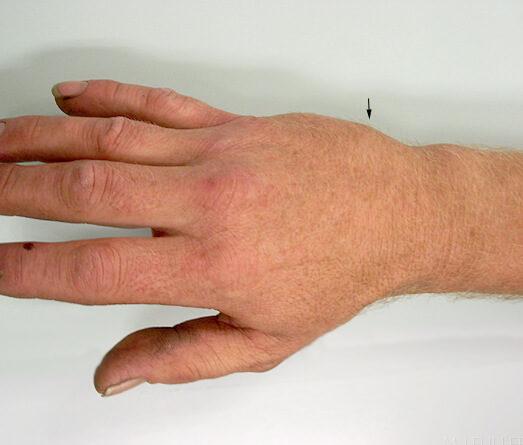 perelom-pyastnoj-kosti (6)