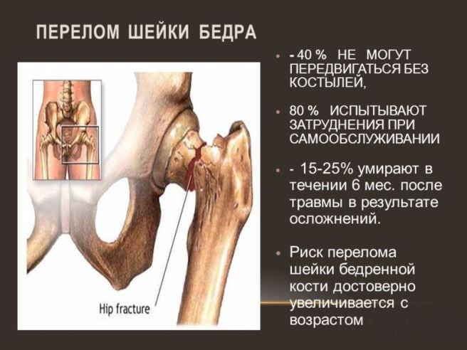posledstviya_pereloma_bedra_perelomkocti.ru