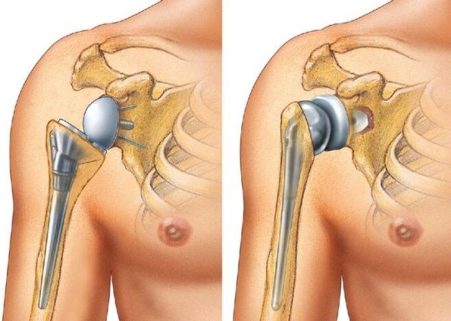 Эндопротезирование плечевого (1)