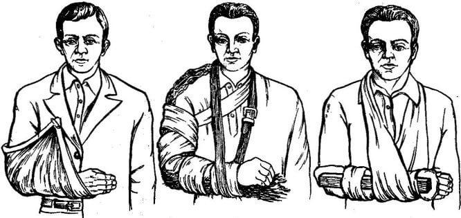 perelom-predplechya (pomosch)