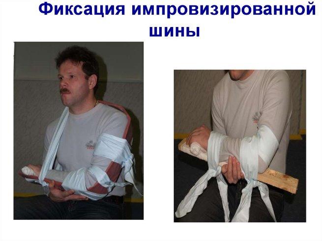 Открытый перелом ноги оказание первой помощи thumbnail