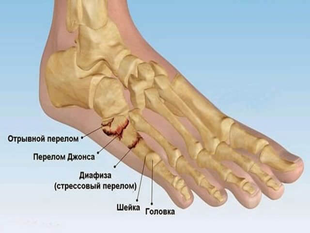 plyusnevaya-kost-prelom (1)