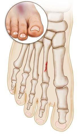 plyusnevaya-kost-prelom (simptom 1)