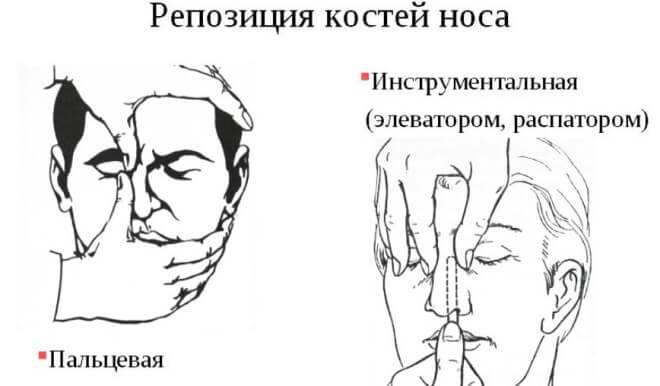 stroenie-kostej-nosa (6)
