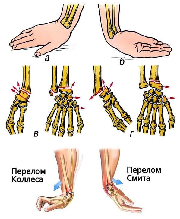 perelom-luchevoi-kosti-ruka