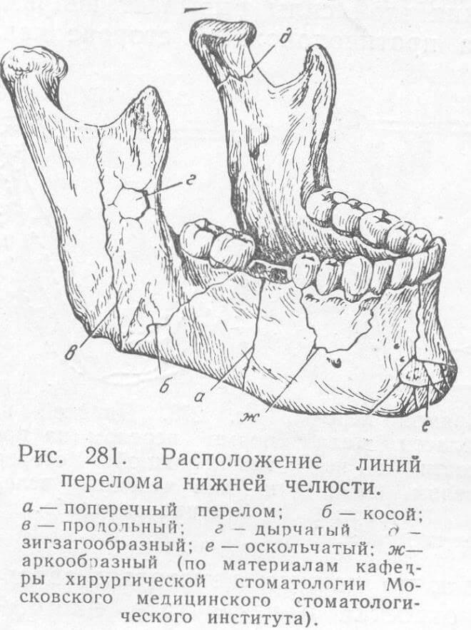 perelom-nizhnej-chelyusti (klassifikaciya)