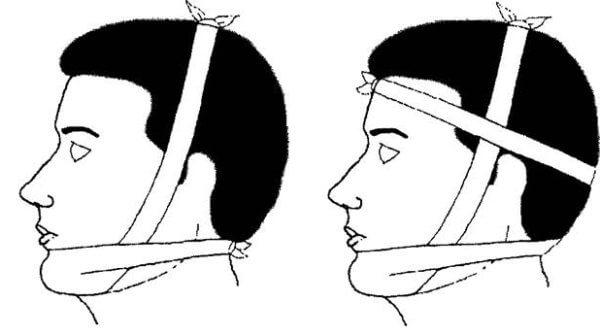 perelom-nizhnej-chelyusti (povyazka)