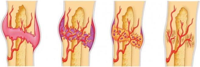 Стадия образования костной мозоли после перелома