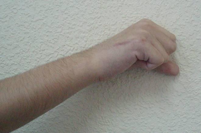косые и поперечные трещины руки
