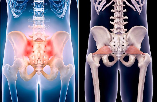 Переломы тазовых костей