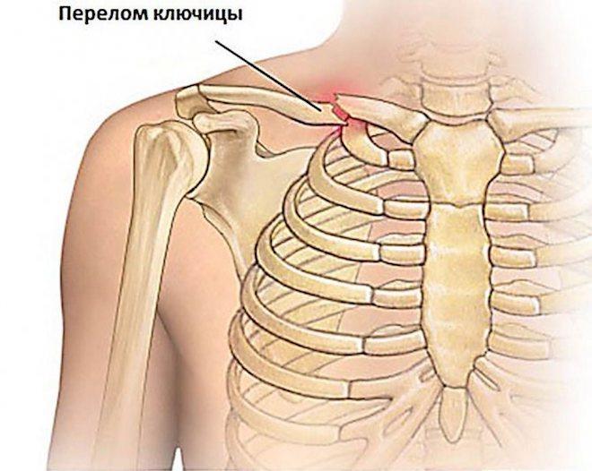 Симптоматика травмы