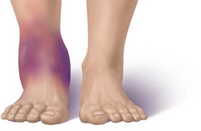 Отеки при переломе ноги