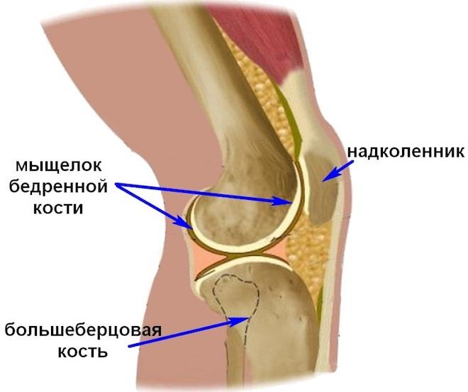 Перелом мыщелка большеберцовой кости