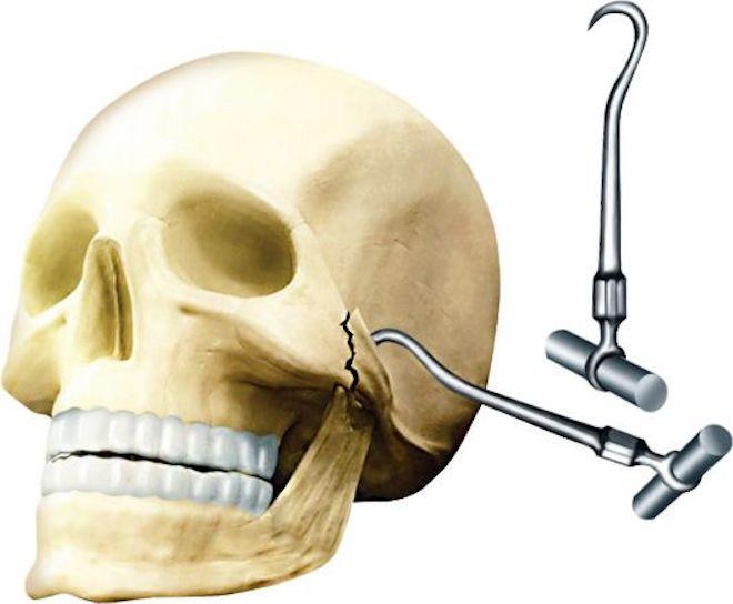 Для травм свода скул используется крючок Лимберга