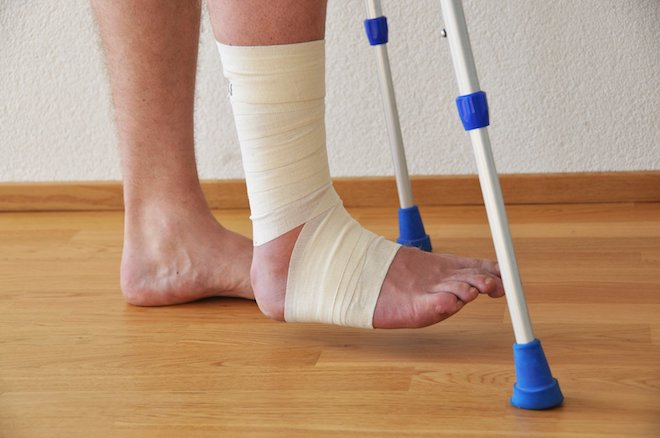 опухоль ноги после снятия гипса