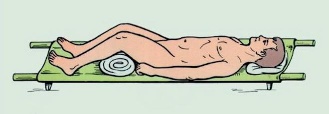 Фиксация и транспортировка больных при переломах крестца