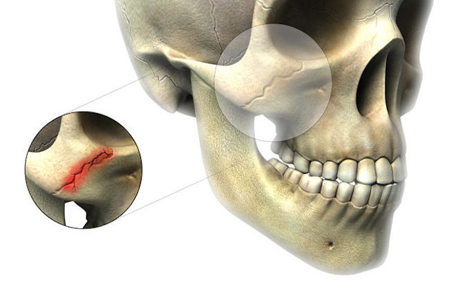 Перелом лицевой кости