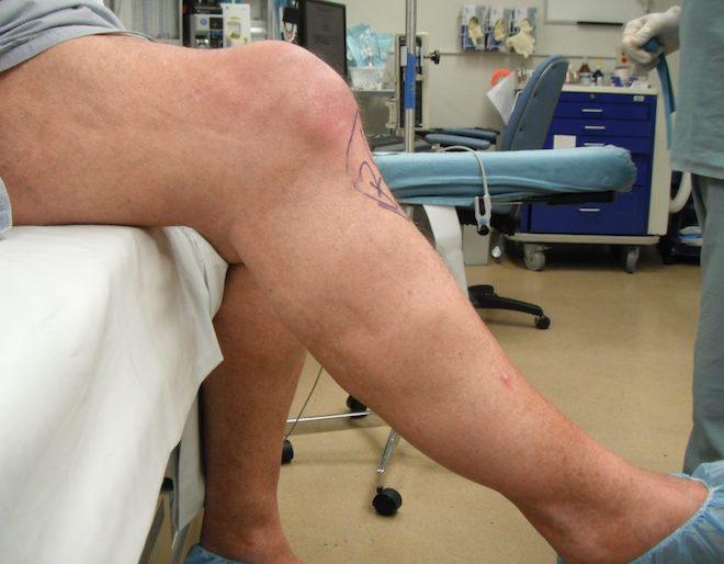деформация колена