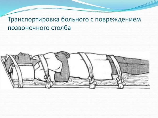 транспортировка пострадавших с переломом позвоночника