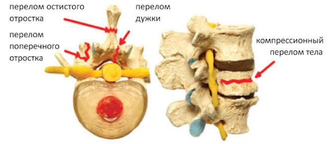 Перелом поперечного отростка позвоночника