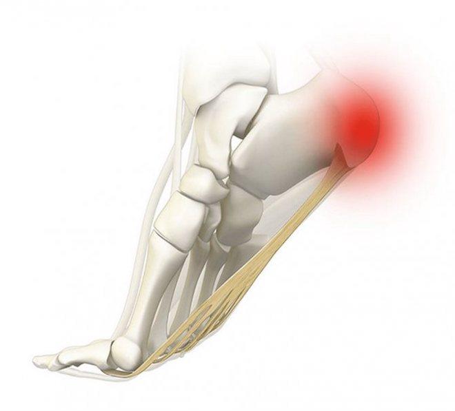0% от всех повреждений подобного вида приходятся на стопу, а точнее пяточную кость