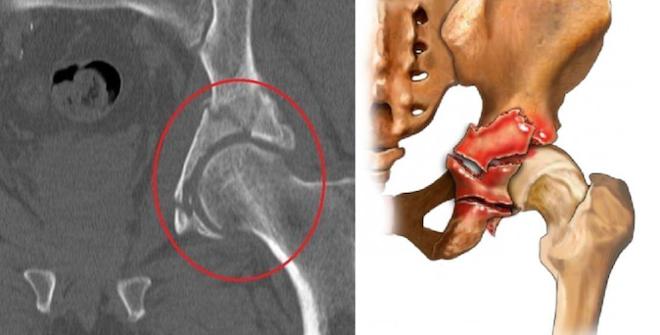 Рентгенография таза и тазобедренного сустава