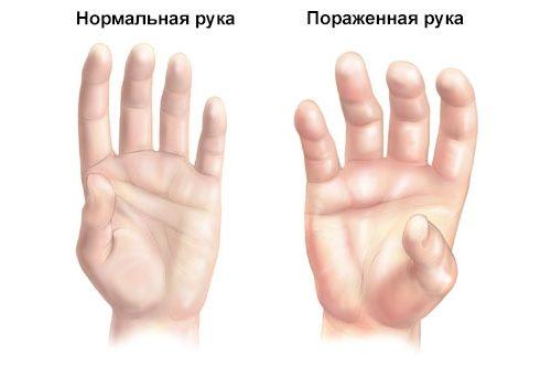 сравнение рук
