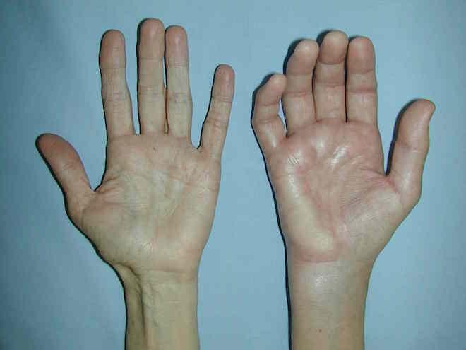 Синдром Зудека сравнение рук