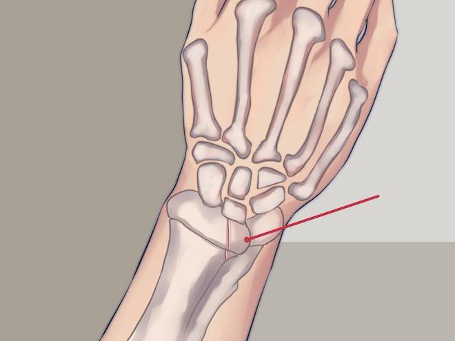Перелом дистального метаэпифиза лучевой кости