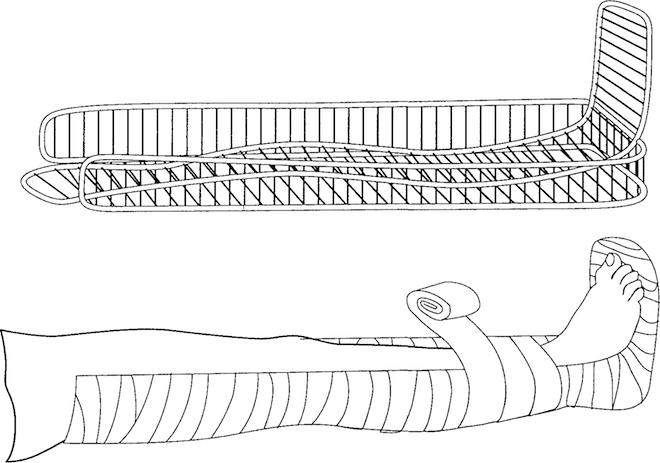 Наложение устройство при травме нижней конечности