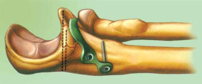 Операция отростка локтевой кости