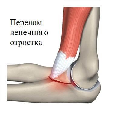Перелом венечного отростка локтевой кости