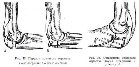 Лечение перелома локтевой кости